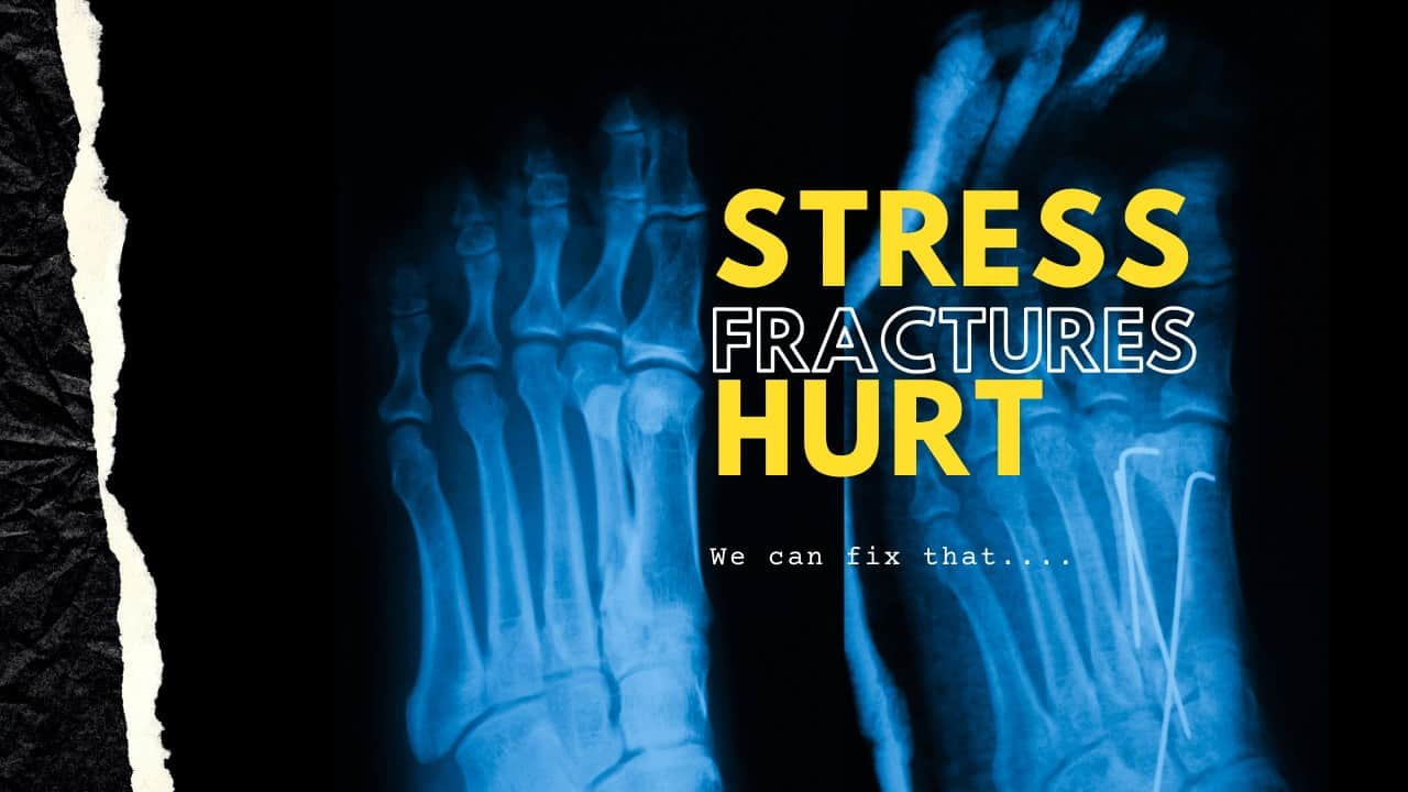 Stress Fractures Richmond Foot Doctor