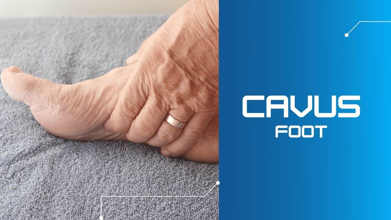 Cavus Foot Richmond VA