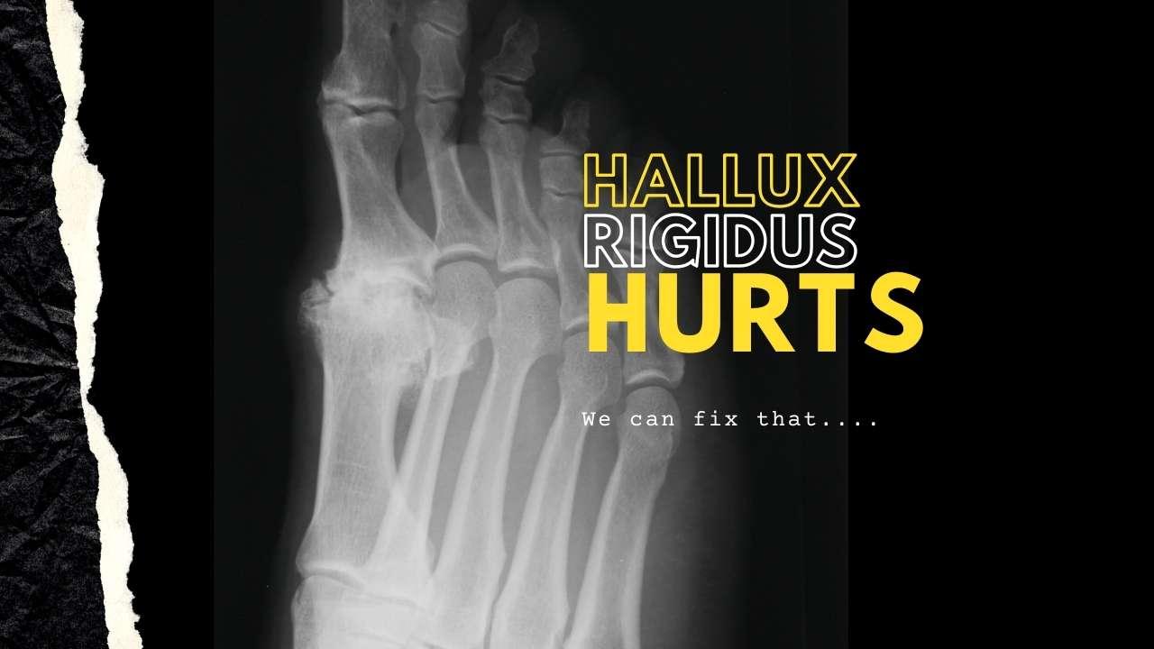Hallux Rigidus Pain