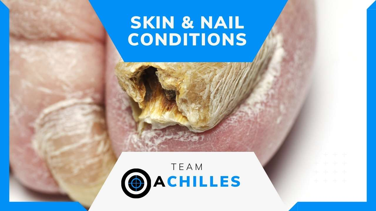 Foot Skin & Nail Conditions